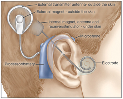 cochlear implant.jpg